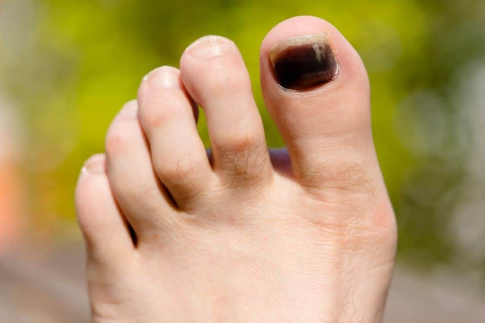 black toenail due to feet sliding in hiking boots
